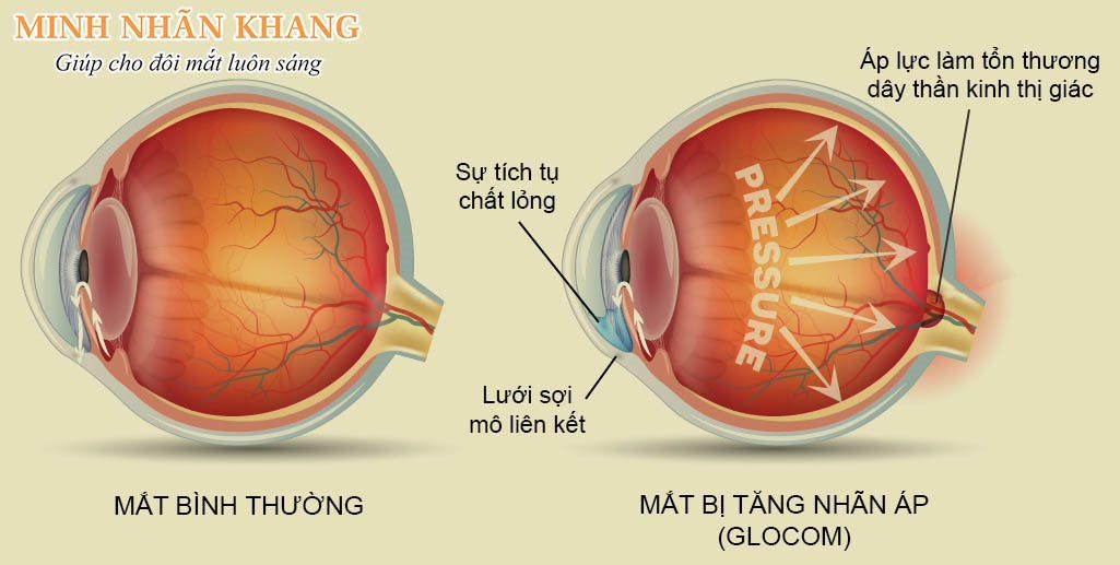 Tăng nhãn áp khiến áp lực tăng cao trong mắt